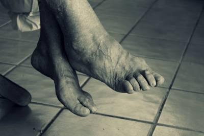 Comment traiter les jambes lourdes ?