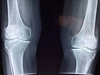 Rhumatismes : comment soulager les douleurs des articulations ?